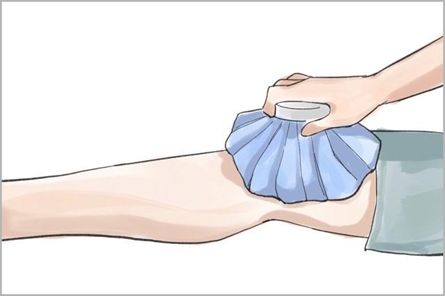 氷のう、または氷をビニール袋に入れてタオルで包んだものでOK