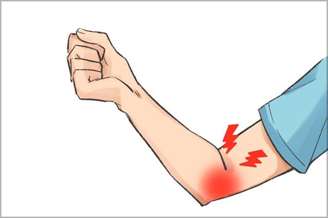 ゴルフで痛みが生じやすいのは肘の内側