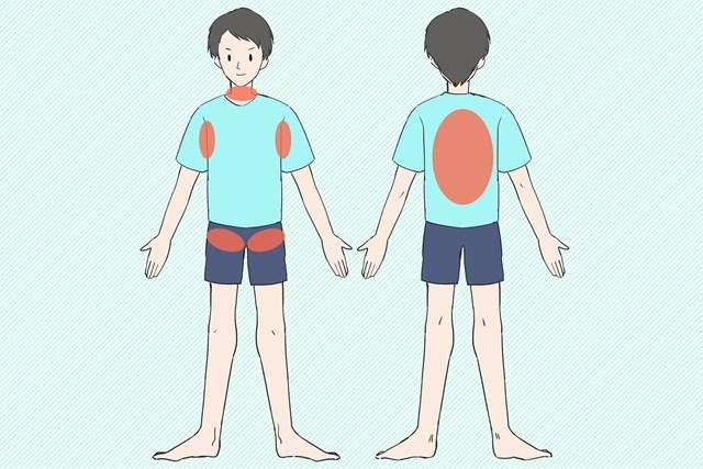 体を冷やすポイント 太い血管が通る場所を冷やしましょう
